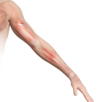 Shoulder and Arm Pain